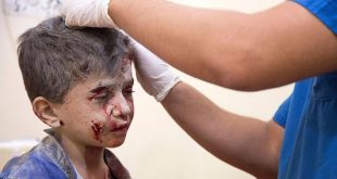 A Syrian boy receives treatment at a make-shift hospital following air strikes on rebel-held eastern areas of Aleppo on September 24, 2016. Heavy Syrian and Russian air strikes on rebel-held eastern areas of Aleppo city killed at least 25 civilians on Saturday, the Britain-based Syrian Observatory for Human Rights said, overwhelming doctors and rescue workers.   / AFP / KARAM AL-MASRI        (Photo credit should read KARAM AL-MASRI/AFP/Getty Images)